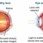 cataract symptoms and causes