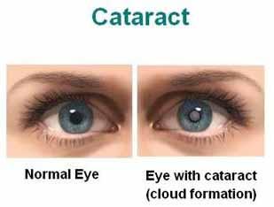 मोतियाबिंद के प्रकार, कारण और निवारण का उपाय Types, Causes And Prevention Of Cataract