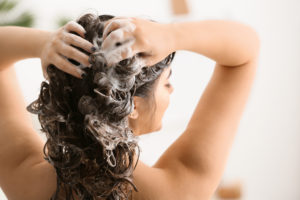 reason for baldness in females